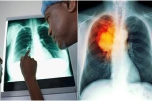 Καρκινογόνες ουσίες στα αρώματα πιο επικίνδυνες και από το κάπνισμα - Ο κίνδυνος που αγνοούμε