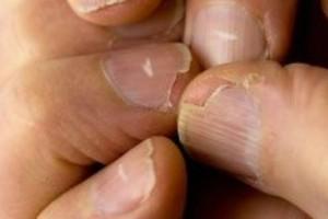 Αν τα νύχια σας είναι έτσι τότε πάσχετε από θανατηφόρα ασθένεια - Ελέγξτε τα τώρα