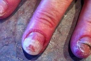 Κατέστρεψε τα νύχια της με ένα υλικό που όλες οι γυναίκες χρησιμοποιούν και είναι στο ημιμόνιμο!