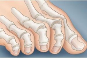 Τα νύχια των ποδιών σας δέιχνουν αν κινδυνεύετε από καρκίνο- Δώστε προσοχή!