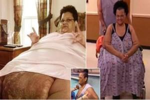 """Ζύγισε 340 κιλά και δεν περπατούσε για πολλά χρόνια - Όταν δείτε πόσο αδυνάτισε θα """"μείνετε"""""""