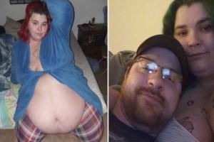 Η 26χρονη στην φωτογραφία είναι 200 κιλά  - Έχει σύντροφο που την ενθαρρύνει να τρώει για να παχύνει περισσότερο