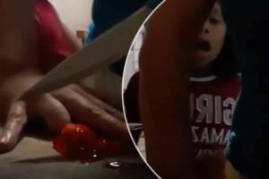 Αυτή η γυναίκα κόβει με ένα αιχμηρό μαχαίρι μια πατάτα  -  Ξαφνικά ακούγεται μια κραυγή και παγώνουν όλοι