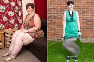 Αυτή η μητέρα έχασε 50 κιλά μετά από σκληρή δίαιτα - Παρατηρήστε όμως τα πόδια της...