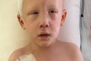 """3χρονο αγοράκι με καρκίνο ανοίγει τα μάτια του για τελευταία φορά - Ψιθύρισε 3 λέξεις και τους """"πάγωσε"""" όλους"""