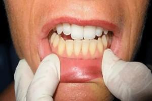 Βούρτσισε τα κάτω δόντια με οδοντόκρεμα και τα πάνω με κάτι άλλο - Η διαφορά σοκάρει!