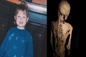 Μέχρι τα 5 της, νόμιζαν ότι είναι ένα φυσιολογικό κορίτσι - Όταν όμως το σώμα της άρχισε να μεταλλάσσεται, ο εφιάλτης ξεκίνησε…