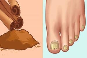 Βάλτε λάδι από λάδι φύλλων κανέλας στα νύχια - Δίνει τέλος σε ένα σημαντικό πρόβλημα