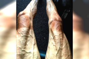 """Δημοσίευσε αυτήν τη φωτογραφία με τα πόδια του και τους σόκαρε όλους - Όταν δείτε από τι έγιναν έτσι θα """"παγώσετε"""""""