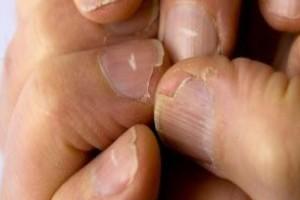 Ελέγξτε αμέσως τα νύχια σας - Αν είναι κάπως έτσι επισκεφθείτε ένα γιατρό