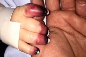 """Οι γιατροί πανικοβλήθηκαν όταν είδαν τα χέρια του μωρού - Τότε αποκάλυψαν το πώς συνέβη και όλοι """"πάγωσαν"""""""