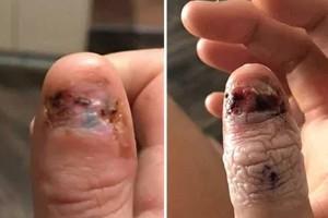 20χρονη έτρωγε τα νύχια της κάθε μέρα - Λίγες μέρες μετά έμαθε τα τραγικά νέα