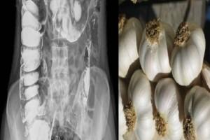 Απίθανο: Τι συμβαίνει αν φάτε το πρωί σκόρδο με άδειο στομάχι