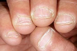 Τρως τα νύχια σου; Αυτό σημαίνει ότι...