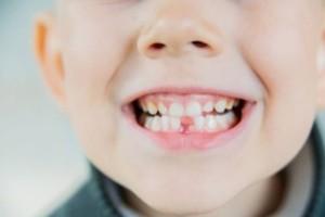 Μήν κάνετε το λάθος και πετάξετε πρώτα δόντια των παιδιών. Ο λόγος είναι απίστευτος