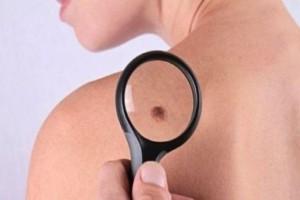 Σας «τρώνε» οι ελιές στο δέρμα σας; Η φαγούρα είναι καρκίνος όταν...