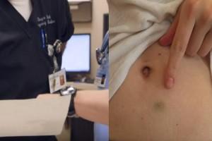 Ένας γιατρός προσπαθούσε να βοηθήσει ένα ζευγάρι να κάνει μωρό - Τότε ανακάλυψε κάτι που τον έκανε να παγώσει