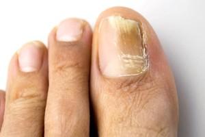 Προσοχή: Αν τα νύχια στα πόδια είναι κίτρινα συνεχώς τότε κινδυνεύετε από...