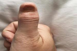 Γυναίκα απέκτησε καρκίνο από βερνίκι νυχιών - Η μελανιά που πήγε να της κοστίσει τη ζωή