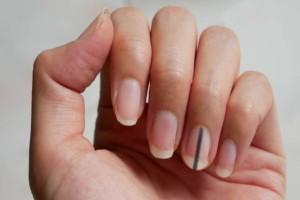 Έχετε παρατηρήσει μαύρες γραμμές στα νύχια σας; Τότε ίσως κινδυνεύετε από...