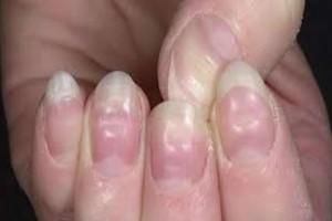 """Έχετε παρατηρήσει """"λακούβες"""" στα νύχια σας; - Επισκεφθείτε άμεσα το γιατρό σας"""