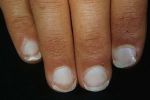 Τα νύχια σας έχουν θαμπώσει; Αυτό σημαίνει ότι...