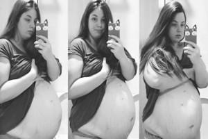 Η κοιλιά της είχε μεγαλώσει υπερβολικά στην τέταρτη εγκυμοσύνη - Δυστυχώς όμως το πρόβλημα ήταν άλλο…