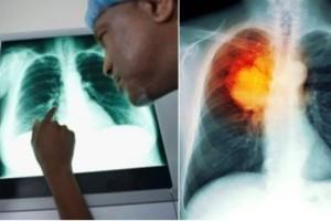 «Είναι πιο καρκινογόνα και από το κάπνισμα και τα χρησιμοποιούμε όλοι μας καθημερινά»