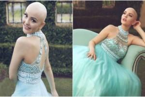 """17χρονη καρκινοπαθής ανατριχιάζει: """"Ο καρκίνος δε με εμποδίζει να είμαι..."""""""