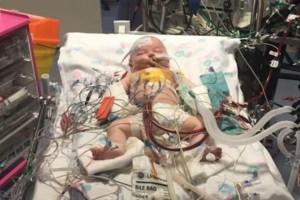 Μωρό επέζησε μετά από 15 ώρες χωρίς καρδιακό παλμό  - 9 μήνες μετά... (Video)
