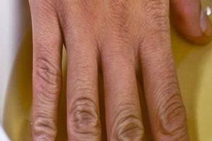 Βάζει τα νύχια της σε μηλόξυδο 2 φορές την εβδομάδα -  Μόλις μάθετε τον λόγο θα το κάνετε και εσείς