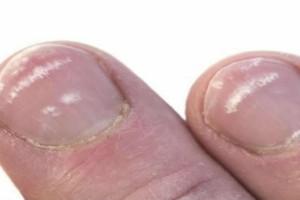 Έχετε λευκά σημάδια στα νύχια σας; Μεγάλη προσοχή!