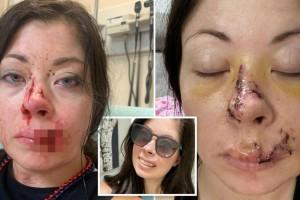 26χρονη δέχθηκε άγρια επίθεση από τρομαγμένο σκύλο - Της κομμάτιασε το πρόσωπο