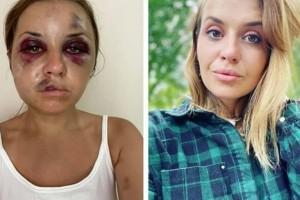 45χρονος αποπειράθηκε να βιάσει 28χρονη μπροστά στον 6χρονο γιο της