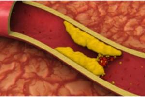 """5 τροφές """"θάνατος"""" για την υγεία σας - Ανεβάζουν την """"κακή"""" χοληστερόλη"""