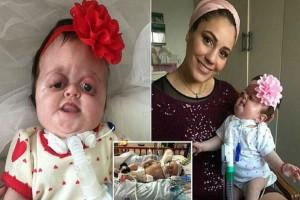 Γέννησε ένα μωρό με παραμορφωμένο πρόσωπο - Όταν ανέβασε μια φωτογραφία στο διαδίκτυο έγινε...