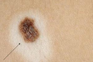 Δεν είναι όλες οι ελιές αθώες πάνω στο σώμα μας - Πως καταλαβαίνουμε αν κάποια είναι ύποπτη