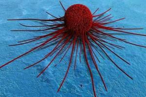 5 τροφές που τρέφουν τα καρκινικά κύτταρα - Με την 3η πάθαμε πλάκα