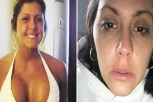 37χρονη αποφάσισε να μεγαλώσει πολύ το στήθος της - Το αποτέλεσμα θα σας κάνει να το ξανασκεφτείτε…
