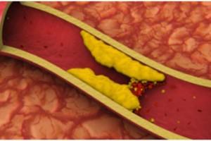 8 top τροφές που καθαρίζουν τις αρτηρίες από την Χοληστερόλη