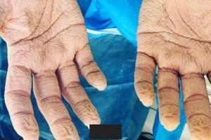 Συγκλονίζει η φωτογραφία με τα χέρια νοσηλευτή μετά από 8 συνεχόμενες ώρες διενέργειας τεστ!