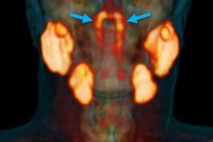 Ανακάλυψη-σοκ στην ιατρική κοινότητα - Το άγνωστο όργανο που επηρεάζει τις θεραπείες του καρκίνου
