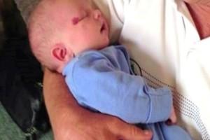 Αυτό το μωρό γεννήθηκε με ένα μικρό σημάδι στο μάτι - Μόλις το είδαν οι γιατροί συνειδητοποίησαν πως ήταν...