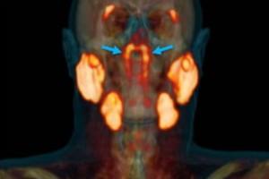 Απίστευτο: Επιστήμονες ανακάλυψαν νέο όργανο στον άνθρωπο