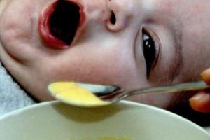 10 δηλητηριώδη τροφές που μας αρέσει να τρώμε!