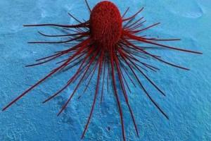 Τα καρκινικά κύτταρα τρέφονται με 10 τροφές που υπερκαταναλώνουμε οι περισσότεροι