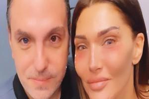 Αγγελική Ηλιάδη: Η αποστομωτική απάντηση σε follower που της είπε ότι παραμορφώθηκε