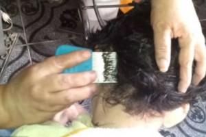 Ανατριχιαστικό video: Δείτε πόσες ψείρες έχει αυτό το κοριτσάκι στο κεφάλι της…