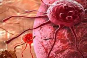 Ο καρκίνος του παχέος εντέρου «χτυπά» πλέον και πιο νέους