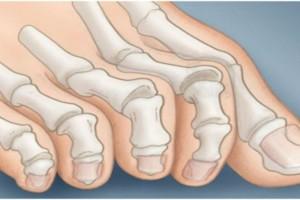 Τα νύχια των ποδιών σας δείχνουν αν κινδυνεύετε από καρκίνο